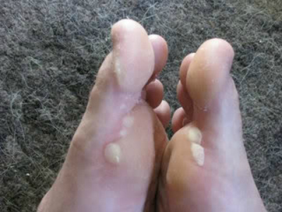 Prevent And Treat Blisters, backpacking for dummies